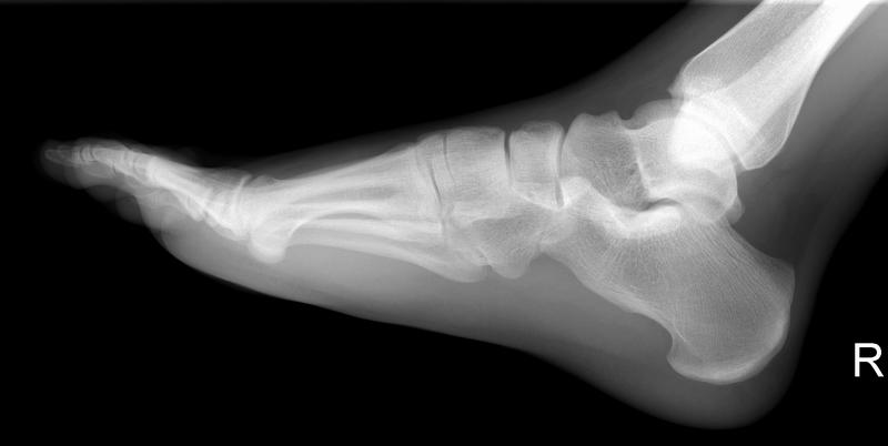 Kurs i basal skelettradiologi 2016